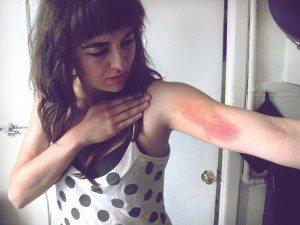 amanda bruise